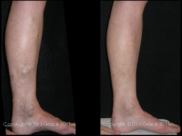 The stages of sclerotherapy over time