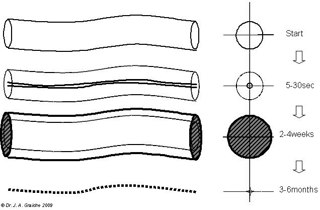 Venous disease matrix