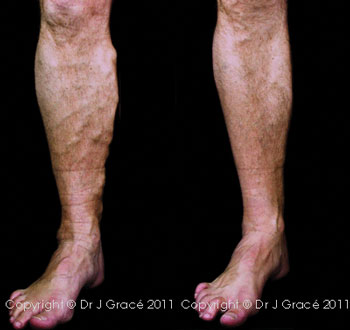 Simple case: 49-year-old male executive given combined treatment for lower leg pain and varicose veins