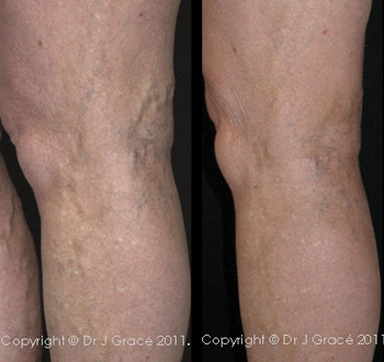 Simple case: 64-year-old grandmother with an aching lower leg treated with MSC and UGS
