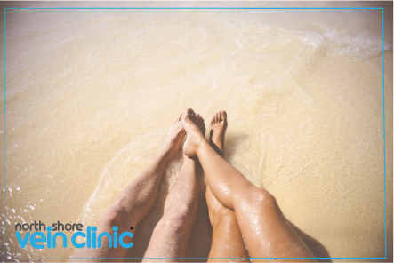 Varicose veins treatments